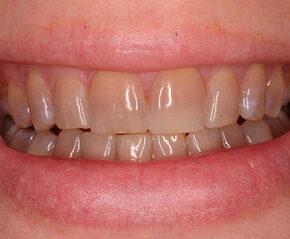 Blanqueamiento Dental L 225 Ser Clinica Dental Sonrisalud