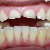 dientes-gastados-por-bruxismo-antes