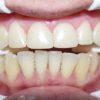 dientes-gastados-por-bruxismo-despues
