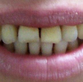 disenar-nueva-sonrisa-antes