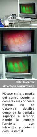 calculo-dental