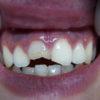 dientes-gastados-antes