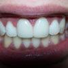 dientes-gastados-despues