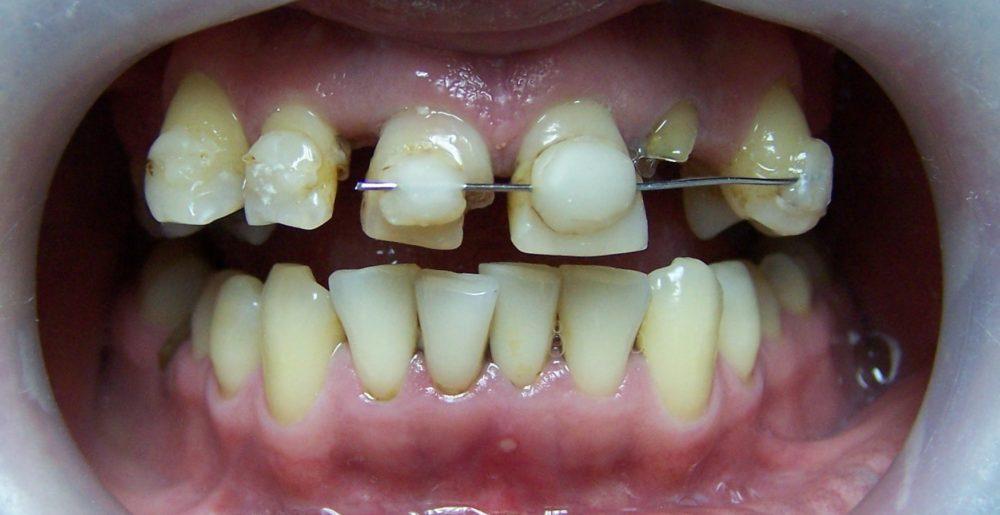 protesis dental fija precio chile