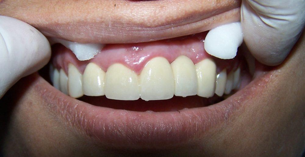 Protesis dental fija antes y despues de adelgazar