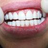 paciente-05-despues-nueva-sonrisa
