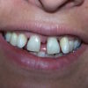 paciente-restauracion-dental-antes